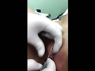 Il suo piercing al clitoride - My wife getting clit pierced