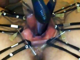 urethra speculum vibrator