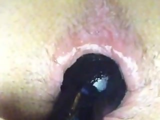 Anal Toying and prolapse
